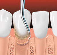 Periodontal Root Planing