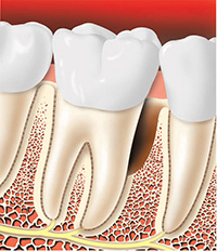 Periodontal Surgery Bone Reshaping