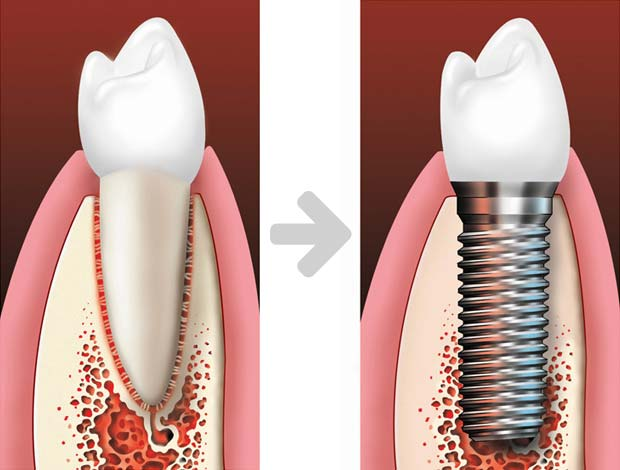 Single implant before-after